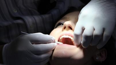 Top 4 des histoires « dentaires » les plus marquantes