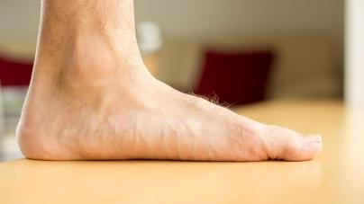 Quels sont les symptômes et les causes du pied plat ?