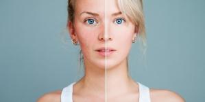 Comment traiter les rougeurs au visage ?